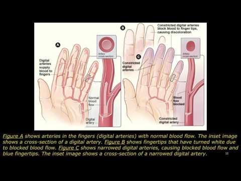 Video raynauds disease