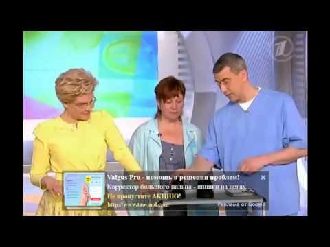 Плоскостопия вальгусная стопа