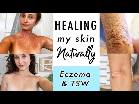 How I CURED Eczema & Topical Steroid Withdrawal NATURALLY | My Skin Healing Journey