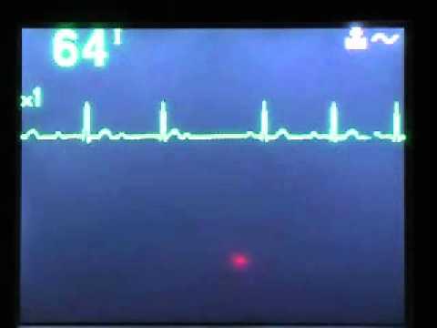 Stupanj 2 hipertenzija
