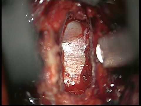 Per il trattamento di una rottura parziale dei tendini spalla congiunte