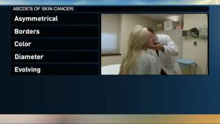 How to do a full-body check for skin cancer