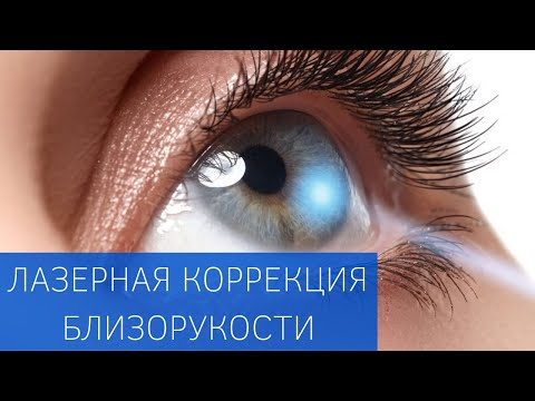 Лазерная коррекция зрения в одессе