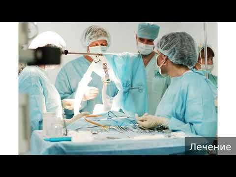 Инвагинация кишечника у детей. Как лечить инвагинацию кишечника у детей.