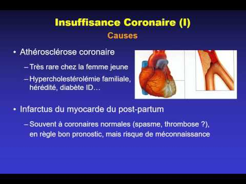 Mezenterialnyj la thrombose lhistoire de la maladie