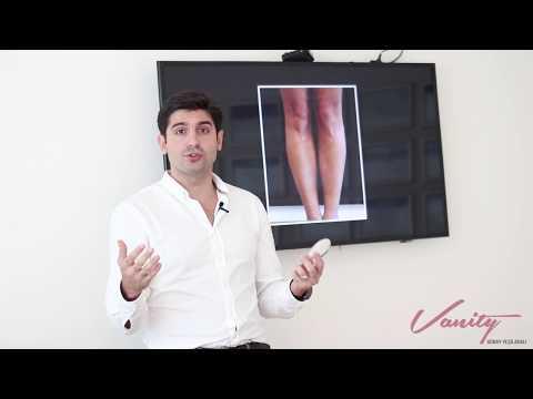 Çarpık Bacak Ameliyatı - Op. Dr. Güray Yeşiladalı