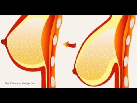 Les prix à belarousi sur laugmentation des poitrines