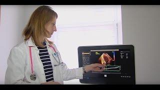 ЛМЦ предлагает анализ продольной систолической деформации миокарда
