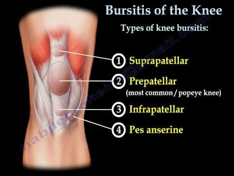 Video Knee Bursitis,prepatellar bursitis  - Everything You Need To Know - Dr. Nabil Ebraheim