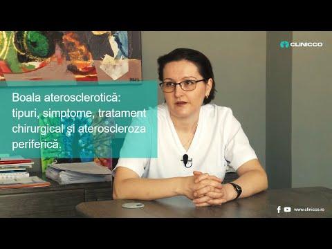 Cremă de artroză articulară