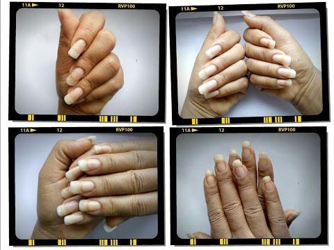 Come mycosis di unghie e piaceri di piedi