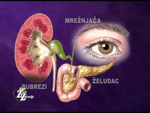 Razred 3 hipertenzija tonzile