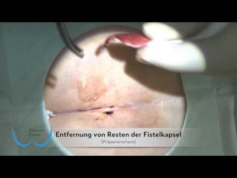 Drei Injektionen in einem der Rückenschmerzen