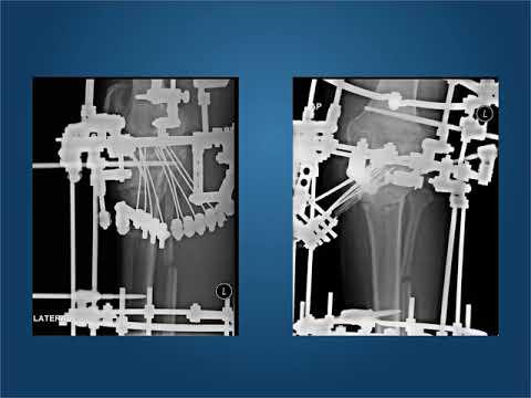 Exerciții pentru dureri de genunchi