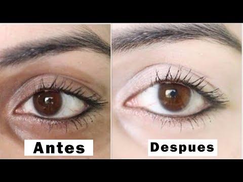Elimina las Ojeras y Bolsas de los ojos EN 3 DÍAS | Remedios Caseros Para Quitar Ojeras