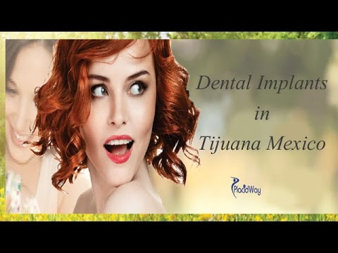 Amazing-Dental-Implants-Done-in-Tijuana-Mexico