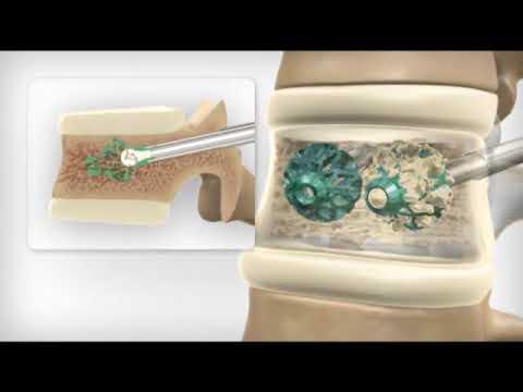 Articolazioni del ginocchio cura