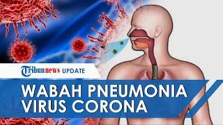 Virus Corona, Virus Jenis Baru dari China Sebabkan Masalah Pernafasan, Gagal Ginjal hingga Kematian