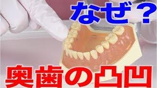 奥歯の凸凹の秘密
