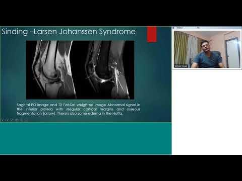 Eufillin in Osteochondrose der Lendenwirbelsäule