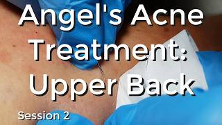 Angel's Acne Treatment  Upper Back - Session II