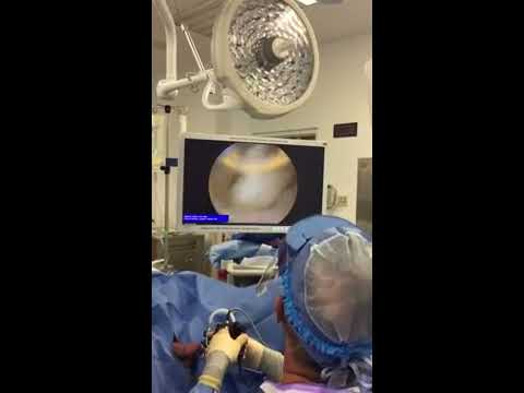 Prostata Muskel
