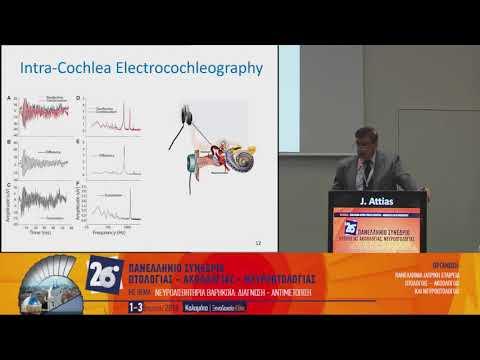 J. Attias - Acoustic neuropathy