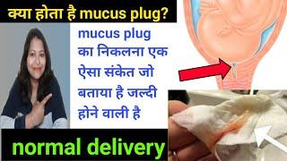 mucus plug एक ऐसा संकेत जो बताया है नॉर्मल डिलीवरी जल्दी होने वाली है। म्यूकस प्लग क्या होता है।