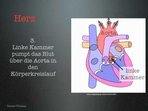 Primäre von sekundären Hypertension