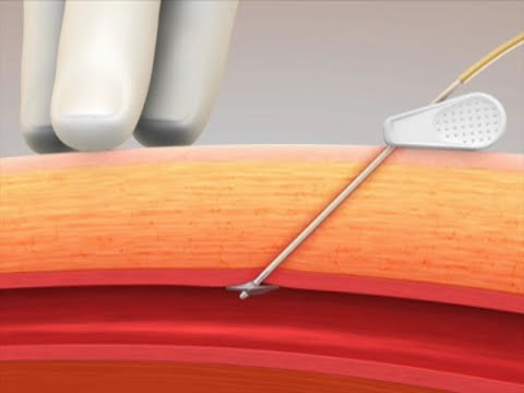 Cardiva CATALYST® II Animation