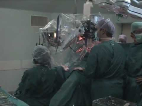 Watch Surgeons Remove Glowing Cancer Cells From A Patient's Ovary