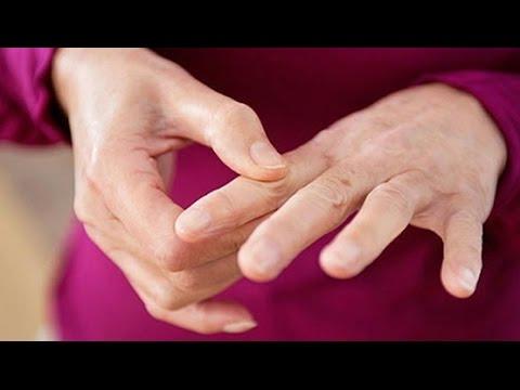 Tendinitis tobillo tendón