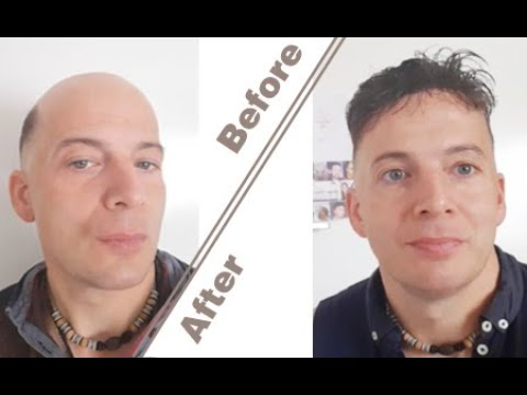 Stephan's New Remy Hair | Lordhair Remy Stock Hair Systems for Men