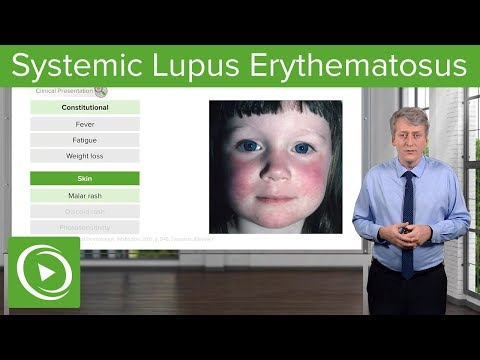 Systemic Lupus Erythematosus (SLE) In Children – Pediatrics | Lecturio