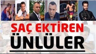 Saç Ektiren Türk Ünlüler !!!