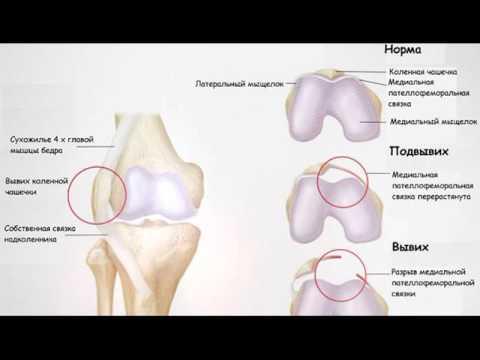 Боль при грыже позвоночника в грудном отделе позвоночника