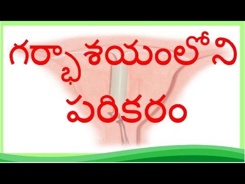 IUD (Copper T and Hormonal IUD) | Telugu | రాగి T- గర్భసంచి లోపల పరికరం