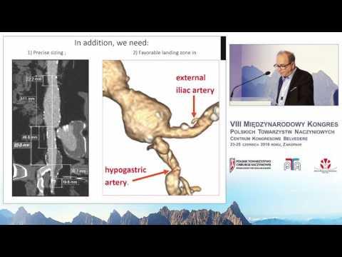 Wewnątrznaczyniowe zaopatrywanie tętniaków tętnic biodrowych