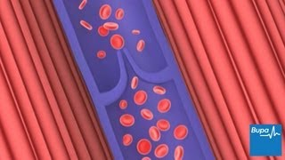 Varicose veins | Health Information | Bupa UK