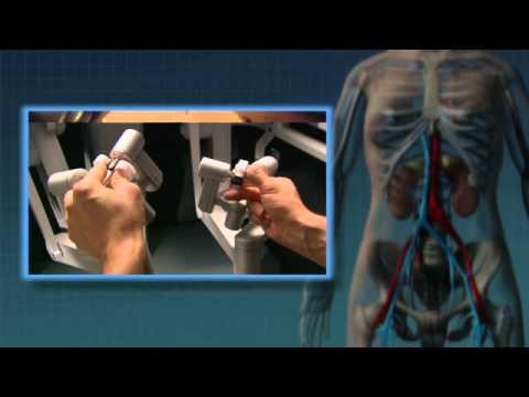 Le massage des pieds de la varicosité