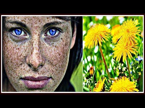 Как можно убрать темные пятна на лице