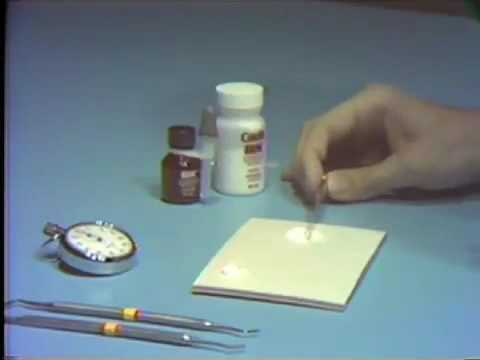 Rimozione laser dei segnali prostata