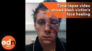 Incredible selfie time-lapse video shows slash victim's face healing