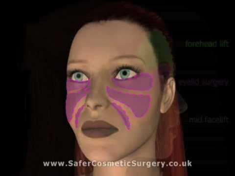 Kung magkano ay isang medikal face mask