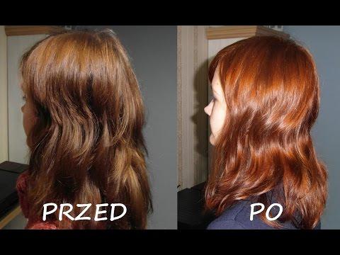 Minoxidil leki wypadanie włosów