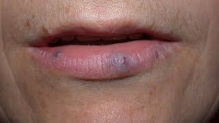 How to get rid of dark spots on lips?-Dr. Rasya Dixit