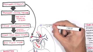 Pulmonary Embolism PART I (Overview)