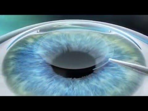 Вадим восстановить зрение