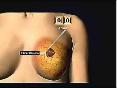 Trattamento di elettroforesi prostatite cronica