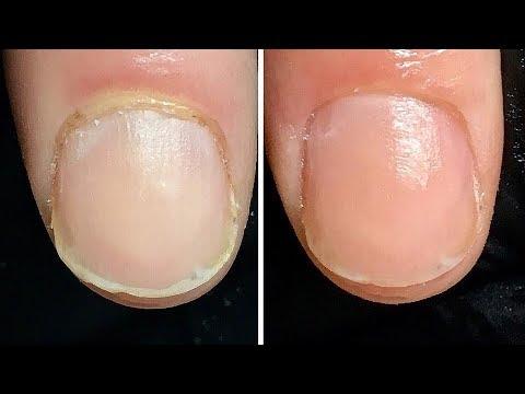 Die Behandlung gribkow auf den Beinen vom Laser ufa